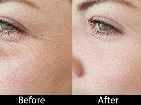 skin-peel after and before